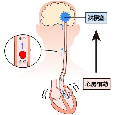 心房細動は脳梗塞(心原性脳塞栓症)の原因に