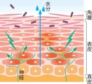 バリアが低下した皮膚