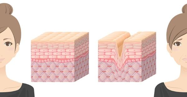 乾燥による「小じわ」だけでなく、肌内部のコラーゲン繊維、エラスチン繊維のダメージもしわの原因になる