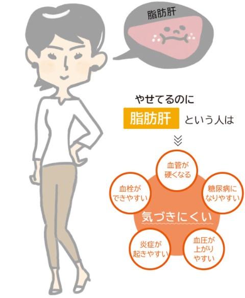 日本人には肥満でないのに脂肪肝の人も多い。このタイプは、内臓脂肪が少なくても脂肪細胞や骨格筋でインスリンの効きが悪くなる。女性の場合は肝臓の線維化や、筋肉内に脂肪がたまる筋脂肪化も進みやすい。