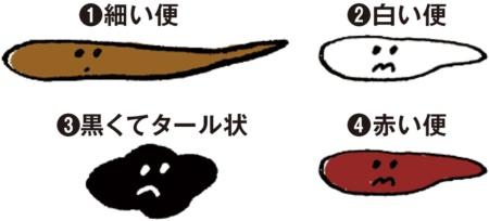 (1)細い便:腸内にがんができると腸管が狭くなるため便が細くなる。(2)白い便:胆石やがんが原因で胆管が詰まると白い便が出ることがある。 (3)黒くてタール状:十二指腸や胃の潰瘍、胃がんによる出血は便を黒いタール状にする(4)赤い便:痔や大腸がんなど肛門近くでの出血は便を真っ赤にすることがある。