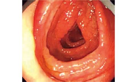 リラックスした状態の腸管内(写真提供/水上部長)