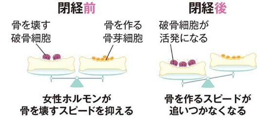 閉経前後で骨代謝のバランスが変わる